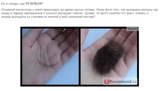 """Таблетки """"Эксперт волос"""": побочные эффекты, отзывы, результат с фото"""