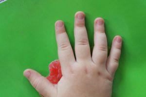 Почему слоятся ногти на руках: причины и лечение