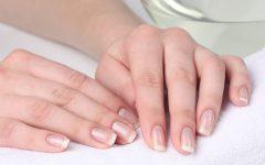 Почему слоятся ногти на руках - причины и лечение