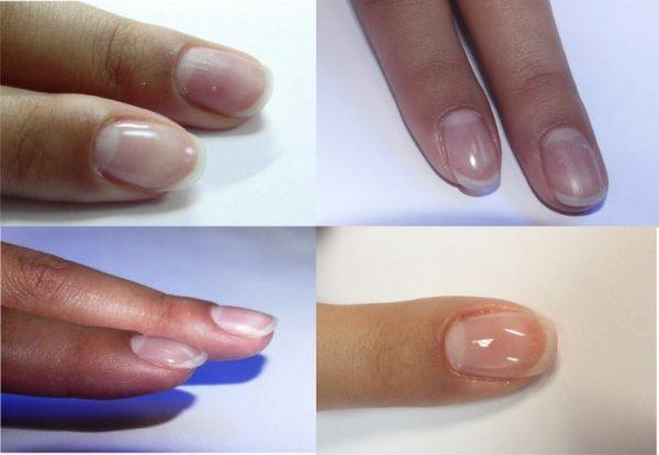 Прощайте ломкие ногти! Укрепление ногтей в домашних условиях