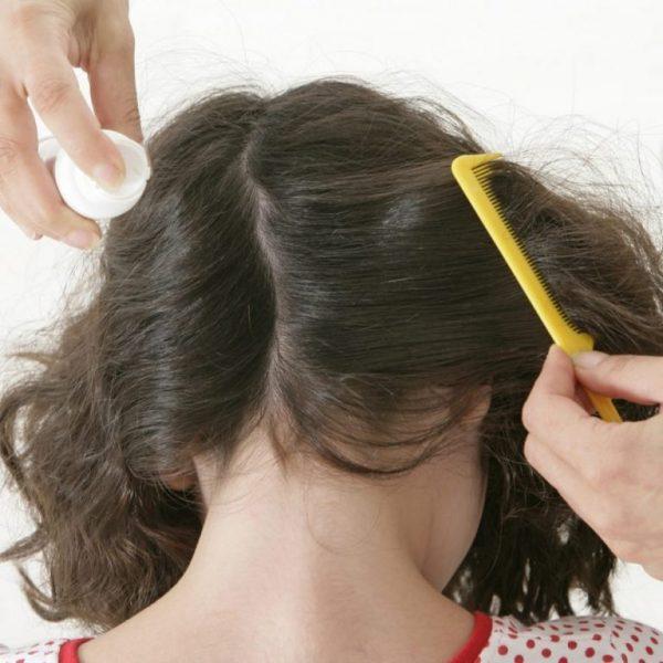 Как вывести гнид с длинных волос у взрослых и детей